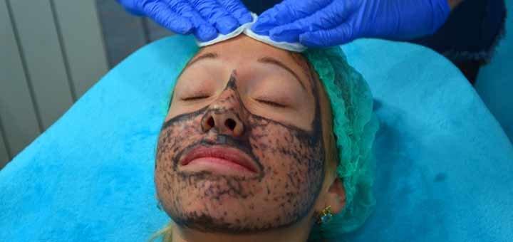 опасные зоны лица в косметологии