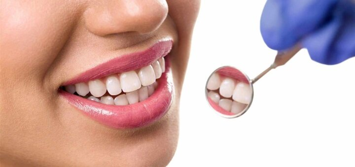 Лікування карієсу з установкою фотополімерних пломб від стоматолога Ростислава Головчанського