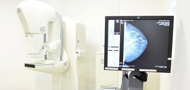Маммография и комплексное обследование у маммолога в клинике «VIVA» на Троещине
